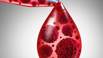 Pacientes com leucemia têm altas chances de cura